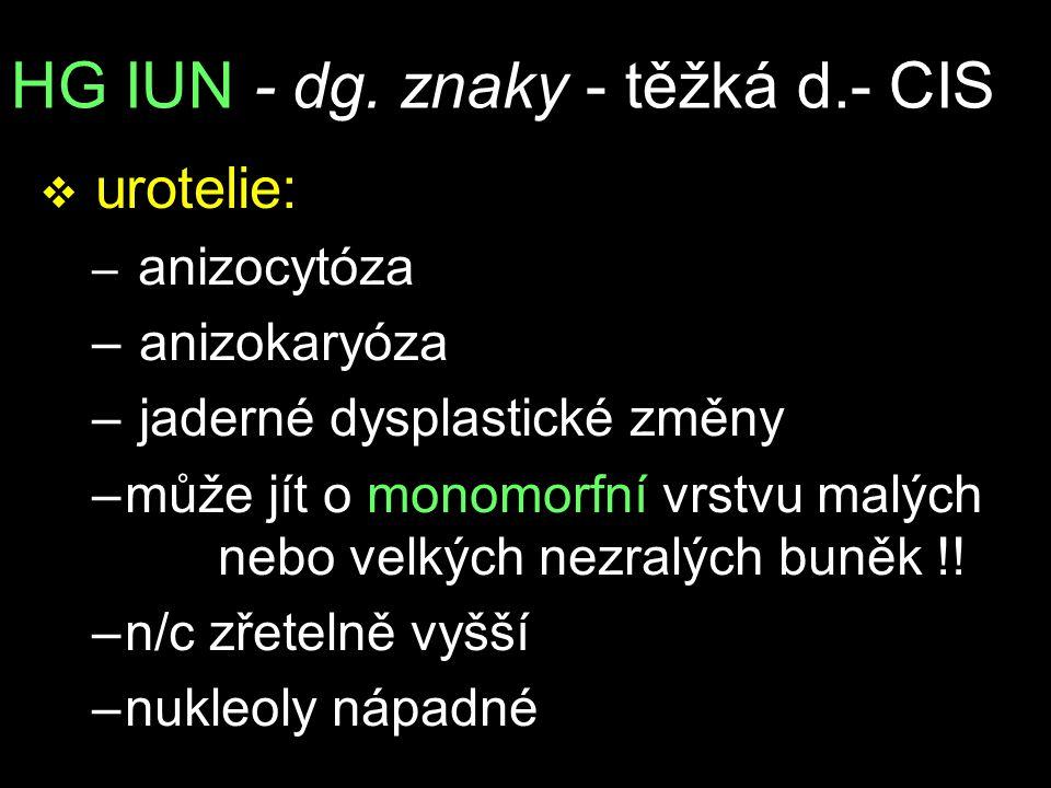 HG IUN - dg. znaky - těžká d.- CIS v urotelie: – anizocytóza – anizokaryóza – jaderné dysplastické změny –může jít o monomorfní vrstvu malých nebo vel