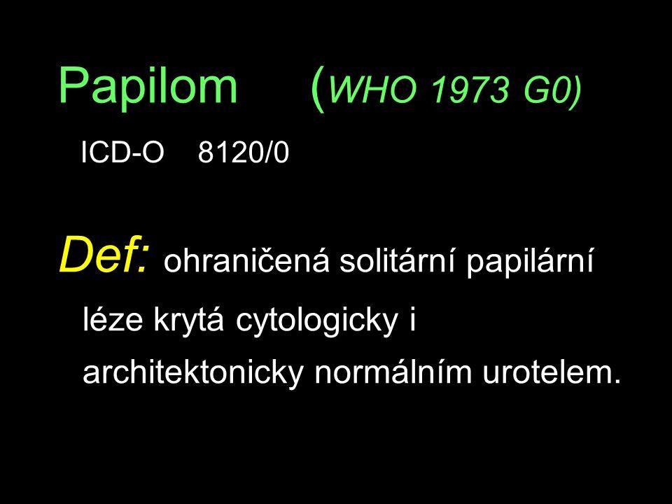 Papilom ( WHO 1973 G0) Def: ohraničená solitární papilární léze krytá cytologicky i architektonicky normálním urotelem. ICD-O 8120/0