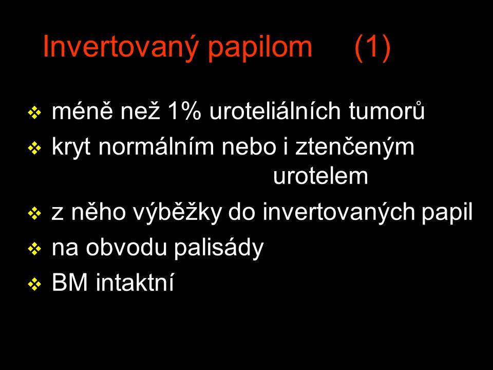 Invertovaný papilom (1) v méně než 1% uroteliálních tumorů v kryt normálním nebo i ztenčeným urotelem v z něho výběžky do invertovaných papil v na obvodu palisády v BM intaktní