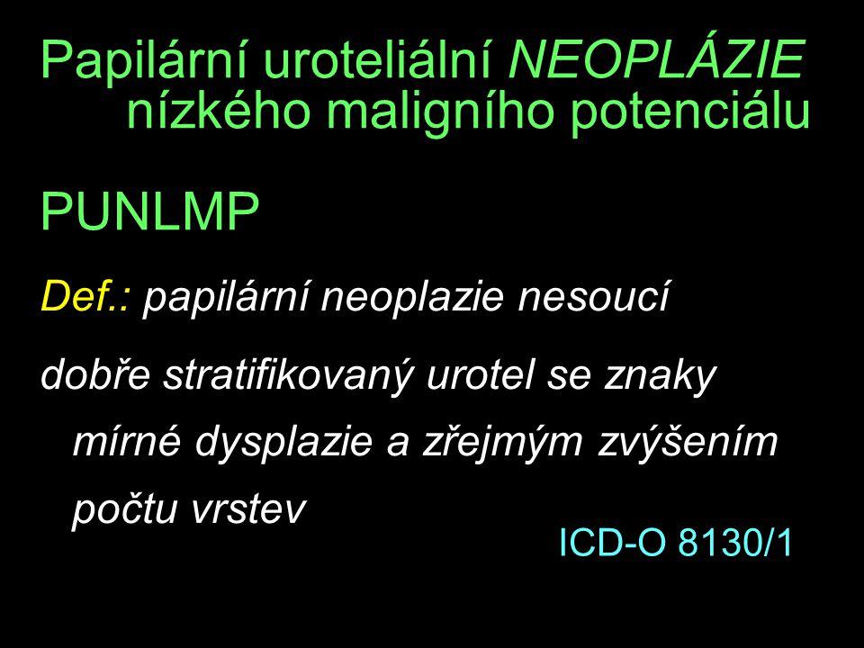 Papilární uroteliální NEOPLÁZIE nízkého maligního potenciálu PUNLMP Def.: papilární neoplazie nesoucí dobře stratifikovaný urotel se znaky mírné dysplazie a zřejmým zvýšením počtu vrstev ICD-O 8130/1