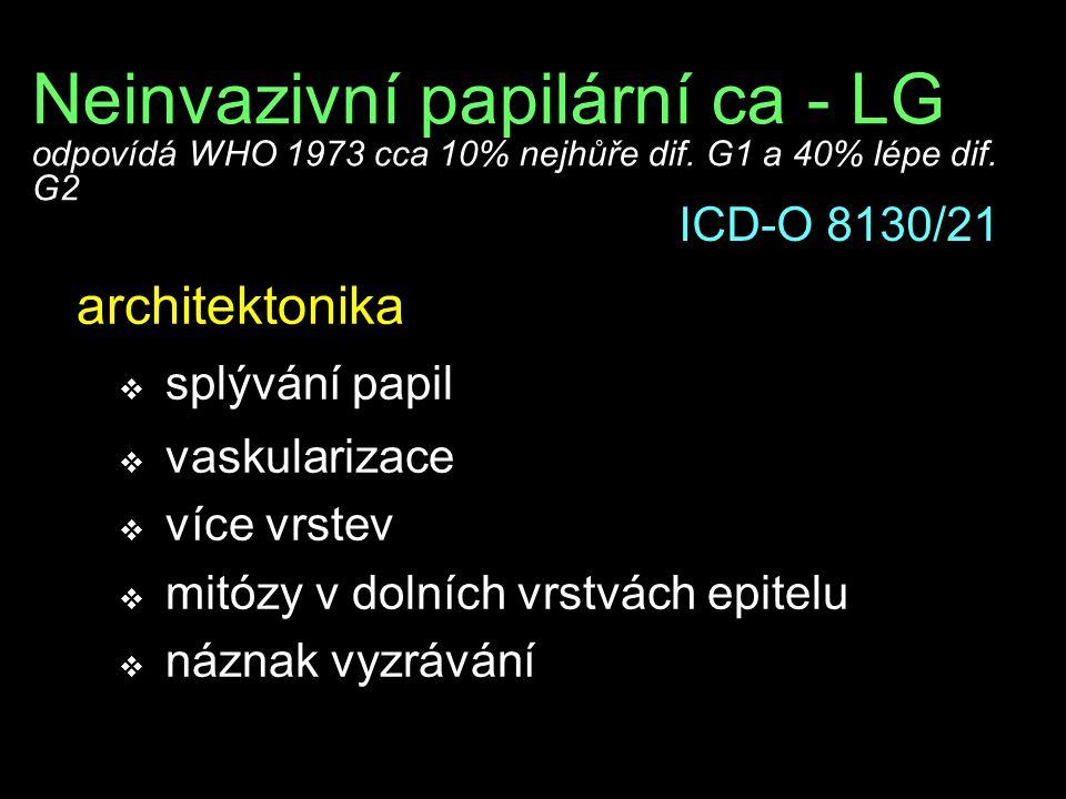 Neinvazivní papilární ca - LG odpovídá WHO 1973 cca 10% nejhůře dif. G1 a 40% lépe dif. G2 architektonika  splývání papil  vaskularizace  více vrst