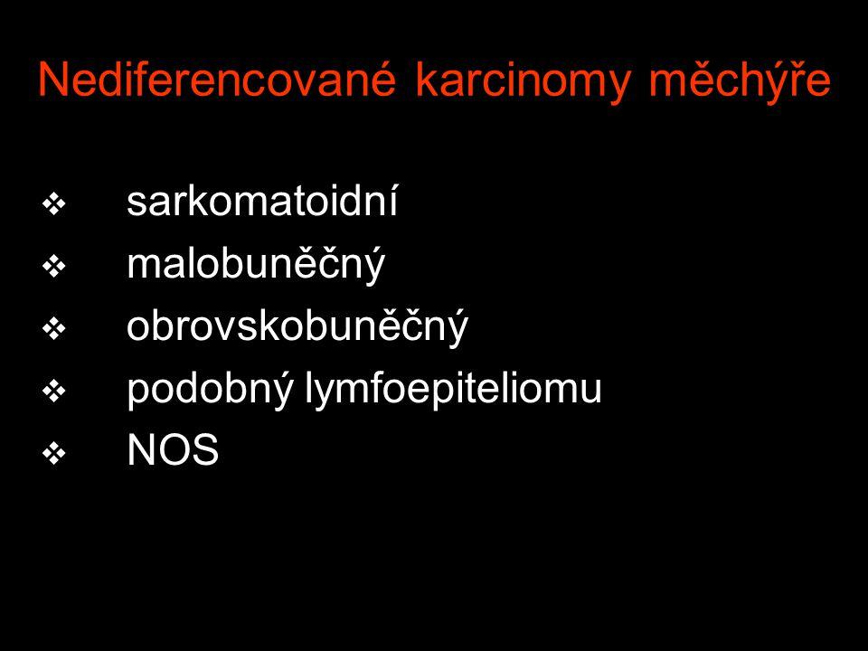 Nediferencované karcinomy měchýře v sarkomatoidní v malobuněčný v obrovskobuněčný v podobný lymfoepiteliomu v NOS
