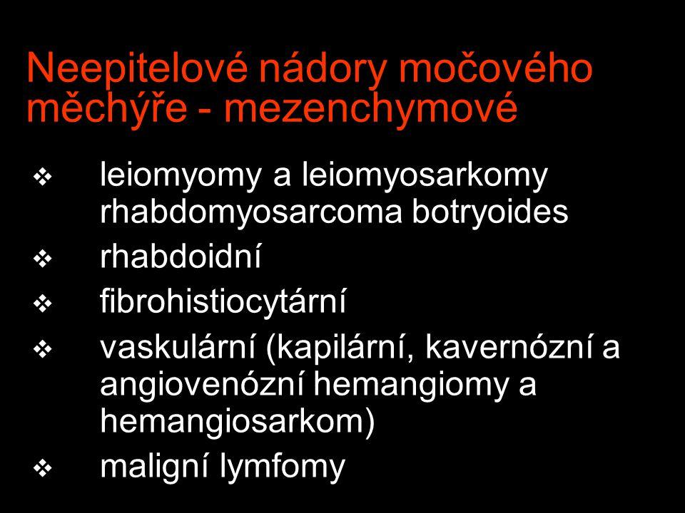 Neepitelové nádory močového měchýře - mezenchymové v leiomyomy a leiomyosarkomy rhabdomyosarcoma botryoides v rhabdoidní v fibrohistiocytární v vaskulární (kapilární, kavernózní a angiovenózní hemangiomy a hemangiosarkom) v maligní lymfomy