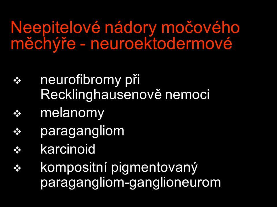 Neepitelové nádory močového měchýře - neuroektodermové v neurofibromy při Recklinghausenově nemoci v melanomy v paragangliom v karcinoid v kompositní pigmentovaný paragangliom-ganglioneurom