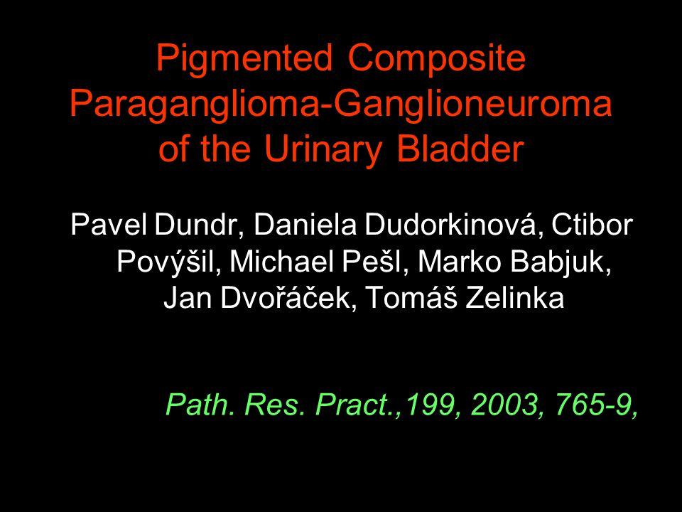 Pigmented Composite Paraganglioma-Ganglioneuroma of the Urinary Bladder Pavel Dundr, Daniela Dudorkinová, Ctibor Povýšil, Michael Pešl, Marko Babjuk, Jan Dvořáček, Tomáš Zelinka Path.