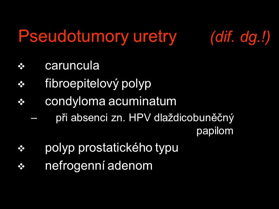 Pseudotumory uretry (dif. dg.!) v caruncula v fibroepitelový polyp v condyloma acuminatum –při absenci zn. HPV dlaždicobuněčný papilom v polyp prostat