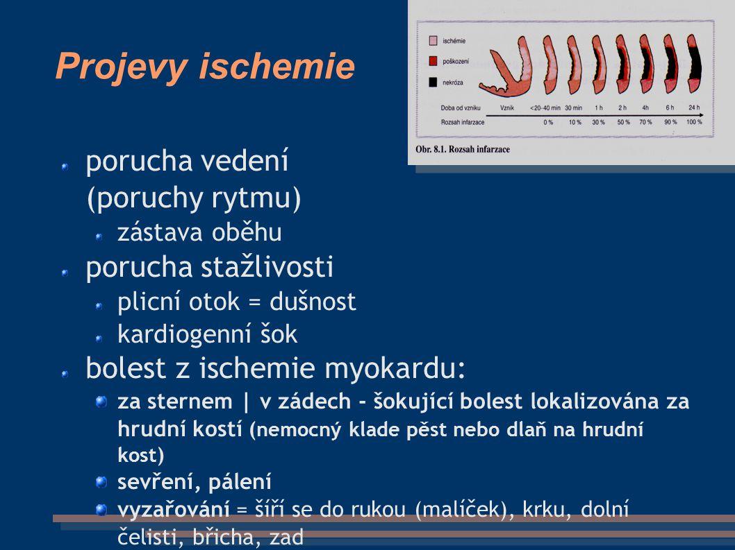 Projevy ischemie porucha vedení (poruchy rytmu) zástava oběhu porucha stažlivosti plicní otok = dušnost kardiogenní šok bolest z ischemie myokardu: za