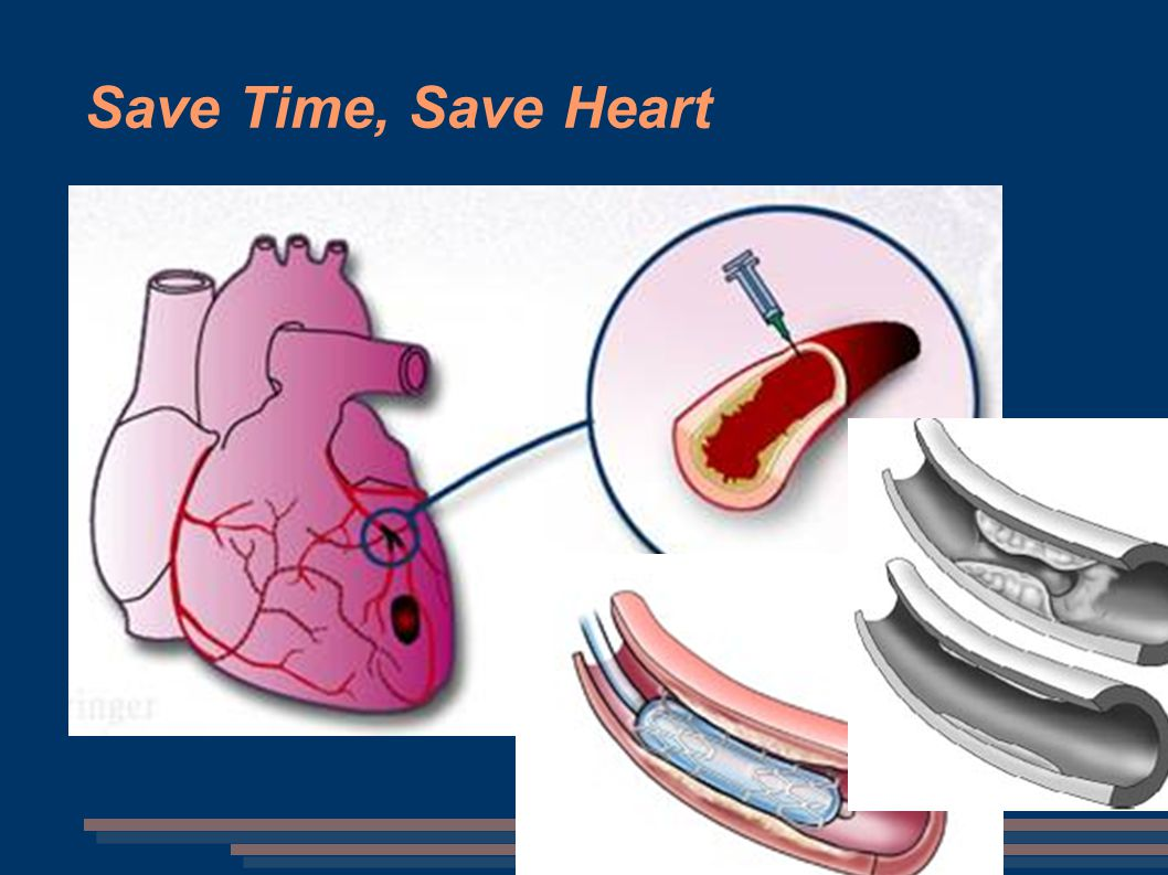 Save Time, Save Heart