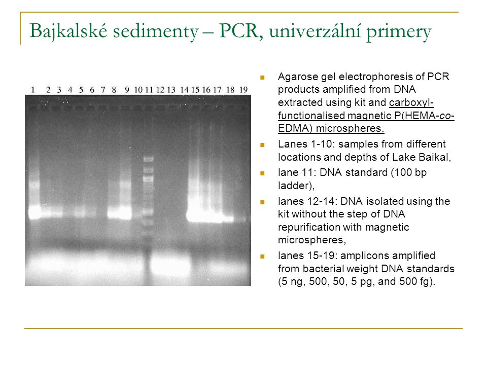 Bajkalské sedimenty – PCR, univerzální primery Agarose gel electrophoresis of PCR products amplified from DNA extracted using kit and carboxyl- functionalised magnetic P(HEMA-co- EDMA) microspheres.