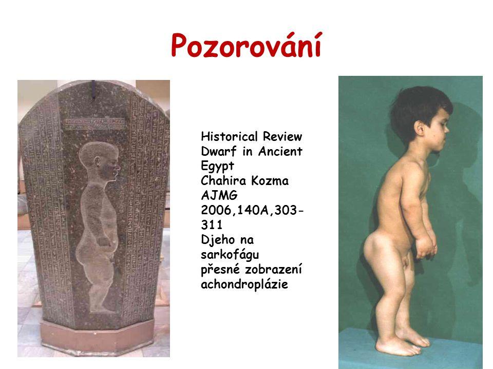 Pozorování Historical Review Dwarf in Ancient Egypt Chahira Kozma AJMG 2006,140A,303- 311 Djeho na sarkofágu přesné zobrazení achondroplázie