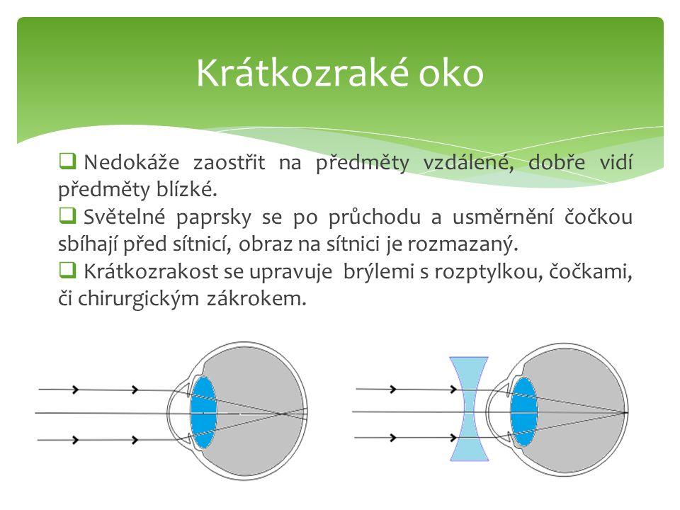 Krátkozraké oko  Nedokáže zaostřit na předměty vzdálené, dobře vidí předměty blízké.  Světelné paprsky se po průchodu a usměrnění čočkou sbíhají pře
