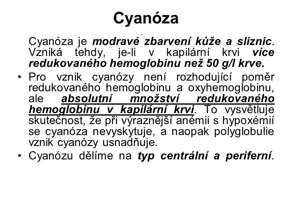 Cyanóza Cyanóza je modravé zbarvení kůže a sliznic. Vzniká tehdy, je-li v kapilární krvi více redukovaného hemoglobinu než 50 g/l krve. Pro vznik cyan