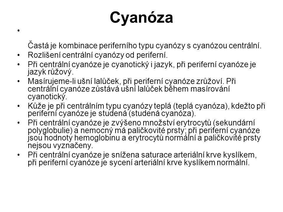 Cyanóza Častá je kombinace periferního typu cyanózy s cyanózou centrální. Rozlišení centrální cyanózy od periferní. Při centrální cyanóze je cyanotick