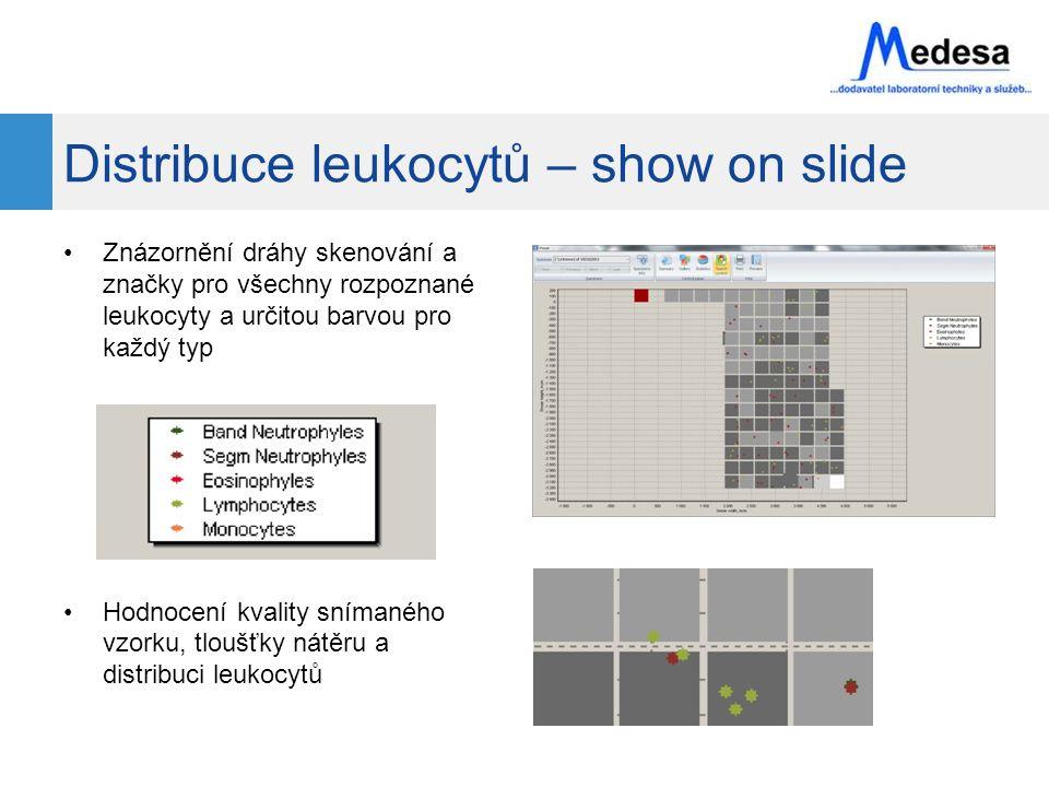 Distribuce leukocytů – show on slide Znázornění dráhy skenování a značky pro všechny rozpoznané leukocyty a určitou barvou pro každý typ Hodnocení kvality snímaného vzorku, tloušťky nátěru a distribuci leukocytů