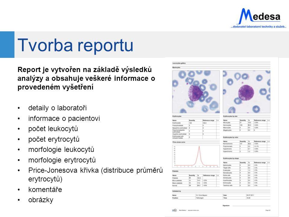 Tvorba reportu Report je vytvořen na základě výsledků analýzy a obsahuje veškeré informace o provedeném vyšetření detaily o laboratoři informace o pacientovi počet leukocytů počet erytrocytů morfologie leukocytů morfologie erytrocytů Price-Jonesova křivka (distribuce průměrů erytrocytů) komentáře obrázky