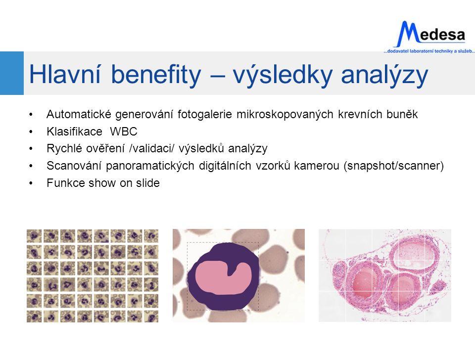Hlavní benefity – výsledky analýzy Automatické generování fotogalerie mikroskopovaných krevních buněk Klasifikace WBC Rychlé ověření /validaci/ výsledků analýzy Scanování panoramatických digitálních vzorků kamerou (snapshot/scanner) Funkce show on slide