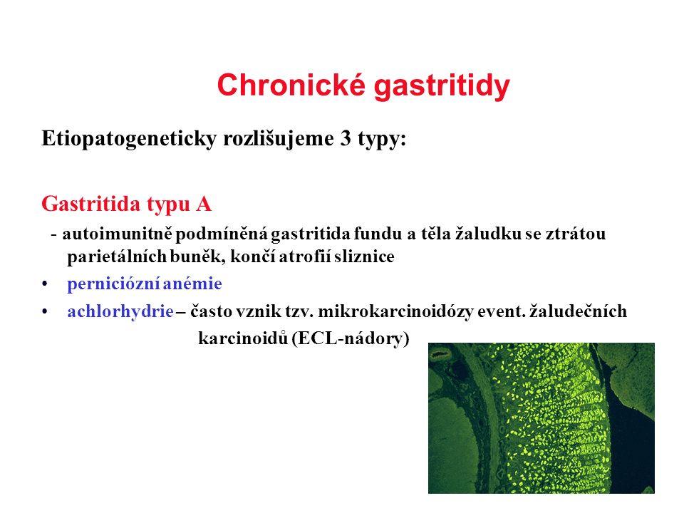 Chronické gastritidy Etiopatogeneticky rozlišujeme 3 typy: Gastritida typu A - autoimunitně podmíněná gastritida fundu a těla žaludku se ztrátou parie