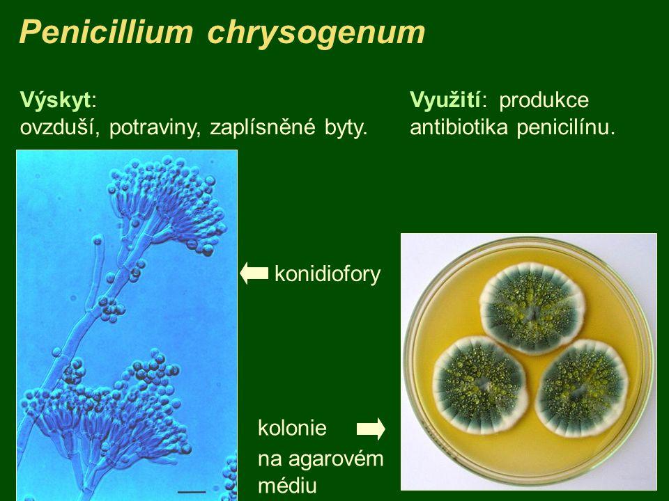 Penicillium chrysogenum kolonie na agarovém médiu Využití: produkce antibiotika penicilínu. konidiofory Výskyt: ovzduší, potraviny, zaplísněné byty.