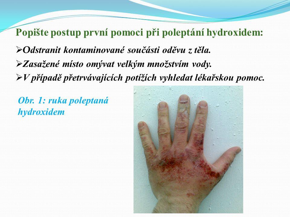 Popište postup první pomoci při poleptání hydroxidem:  O dstranit kontaminované součásti oděvu z těla.