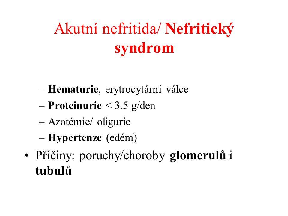 Akutní nefritida/ Nefritický syndrom –Hematurie, erytrocytární válce –Proteinurie < 3.5 g/den –Azotémie/ oligurie –Hypertenze (edém) Příčiny: poruchy/choroby glomerulů i tubulů