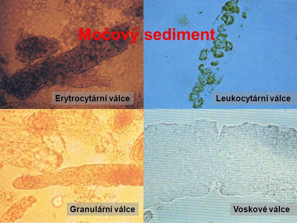 Erytrocytární válceLeukocytární válce Granulární válceVoskové válce Močový sediment