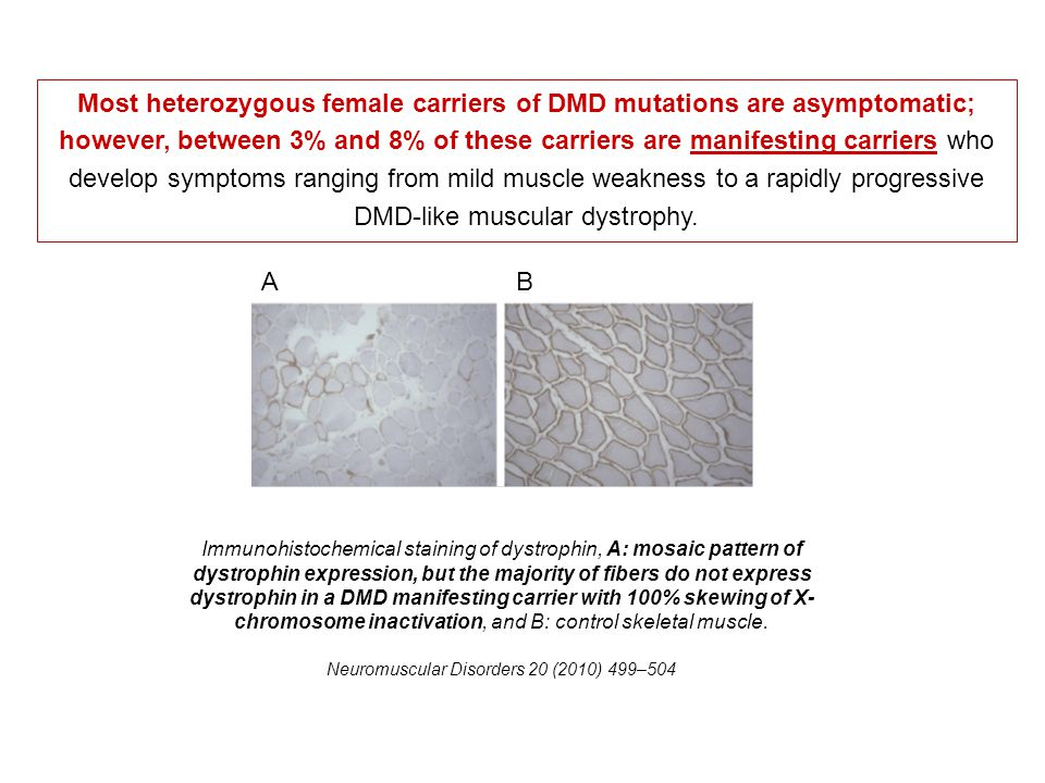 Most heterozygous female carriers of DMD mutations are asymptomatic; however, between 3% and 8% of these carriers are manifesting carriers who develop