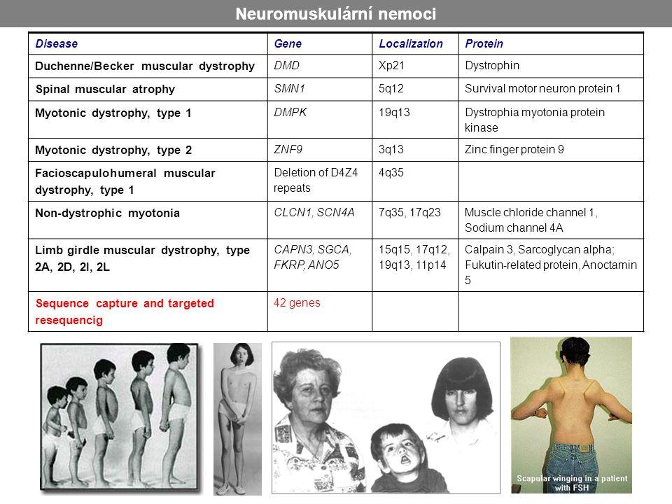 Neuromuskulární nemoci DiseaseGeneLocalizationProtein Duchenne/Becker muscular dystrophy DMDXp21Dystrophin Spinal muscular atrophy SMN15q12Survival mo