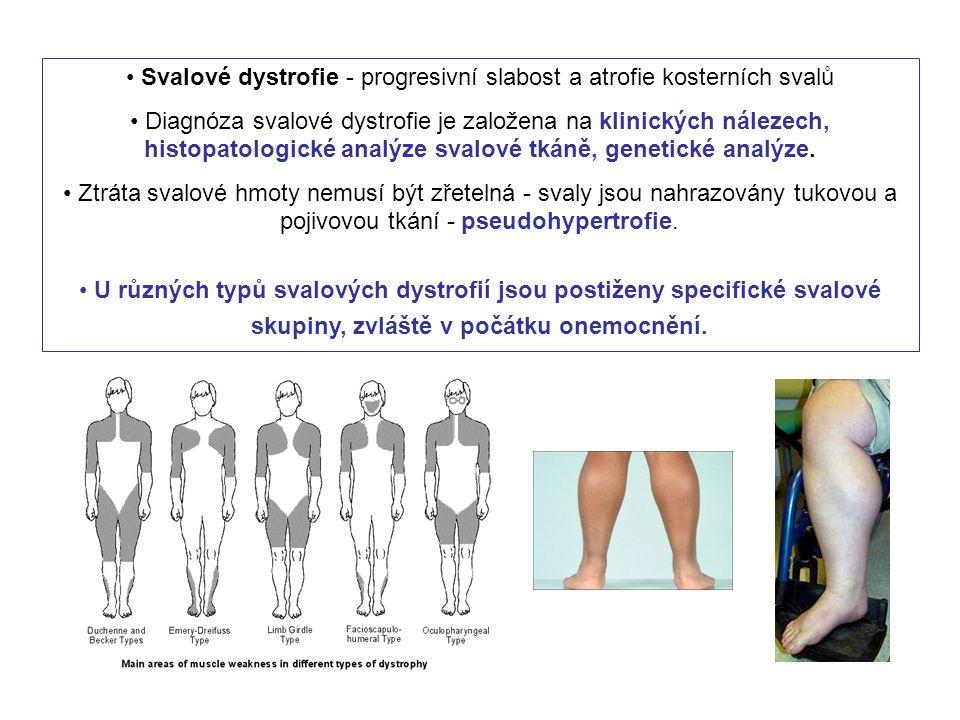 Svalové dystrofie - progresivní slabost a atrofie kosterních svalů Diagnóza svalové dystrofie je založena na klinických nálezech, histopatologické ana