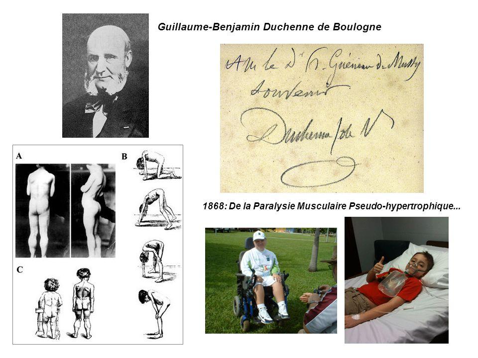 Guillaume-Benjamin Duchenne de Boulogne 1868: De la Paralysie Musculaire Pseudo-hypertrophique...