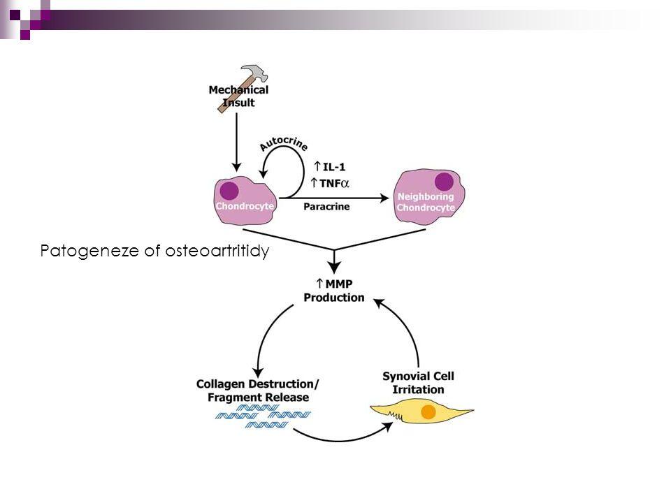 Patogeneze of osteoartritidy