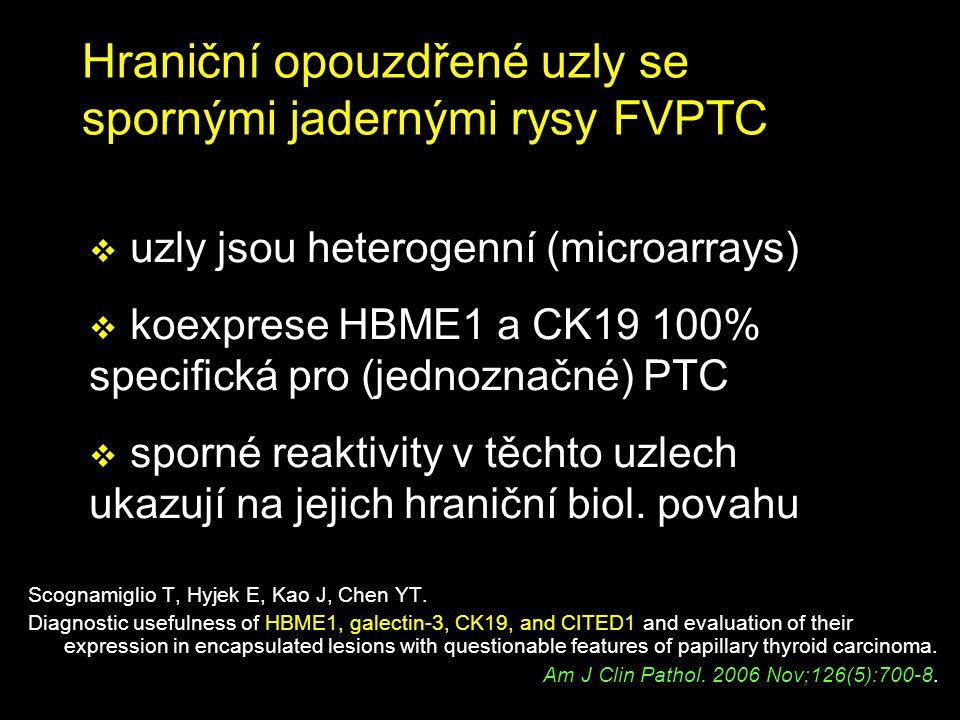 Hraniční opouzdřené uzly se spornými jadernými rysy FVPTC Scognamiglio T, Hyjek E, Kao J, Chen YT. Diagnostic usefulness of HBME1, galectin-3, CK19, a