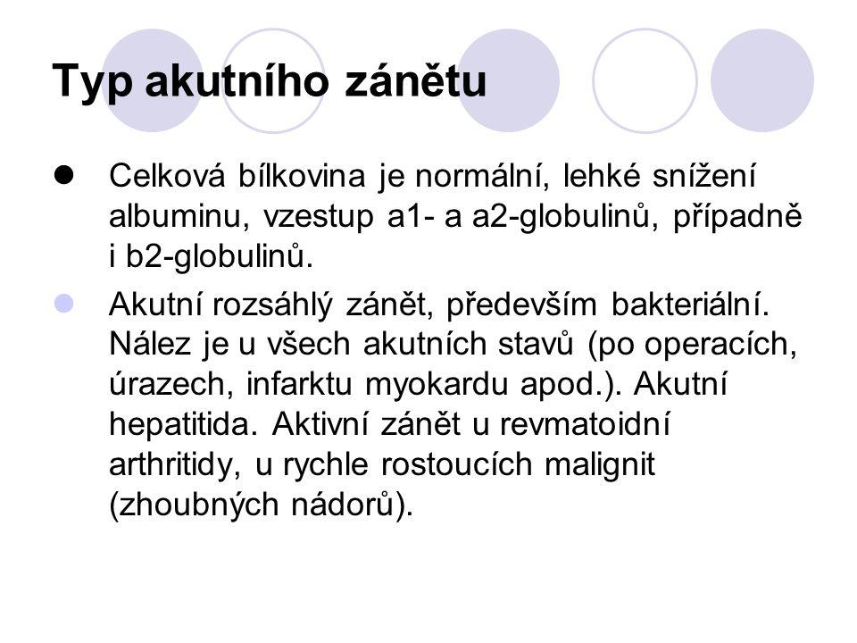 Typ akutního zánětu Celková bílkovina je normální, lehké snížení albuminu, vzestup a1- a a2-globulinů, případně i b2-globulinů. Akutní rozsáhlý zánět,