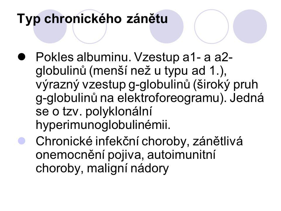 Typ chronického zánětu Pokles albuminu. Vzestup a1- a a2- globulinů (menší než u typu ad 1.), výrazný vzestup g-globulinů (široký pruh g-globulinů na