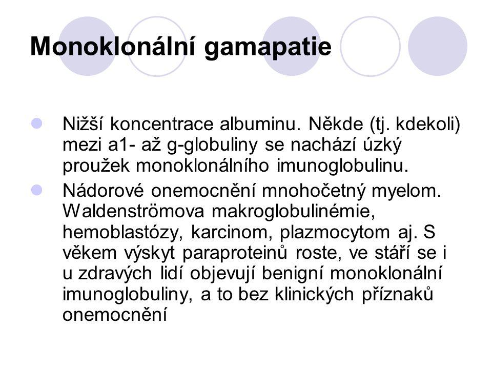 Monoklonální gamapatie Nižší koncentrace albuminu. Někde (tj. kdekoli) mezi a1- až g-globuliny se nachází úzký proužek monoklonálního imunoglobulinu.
