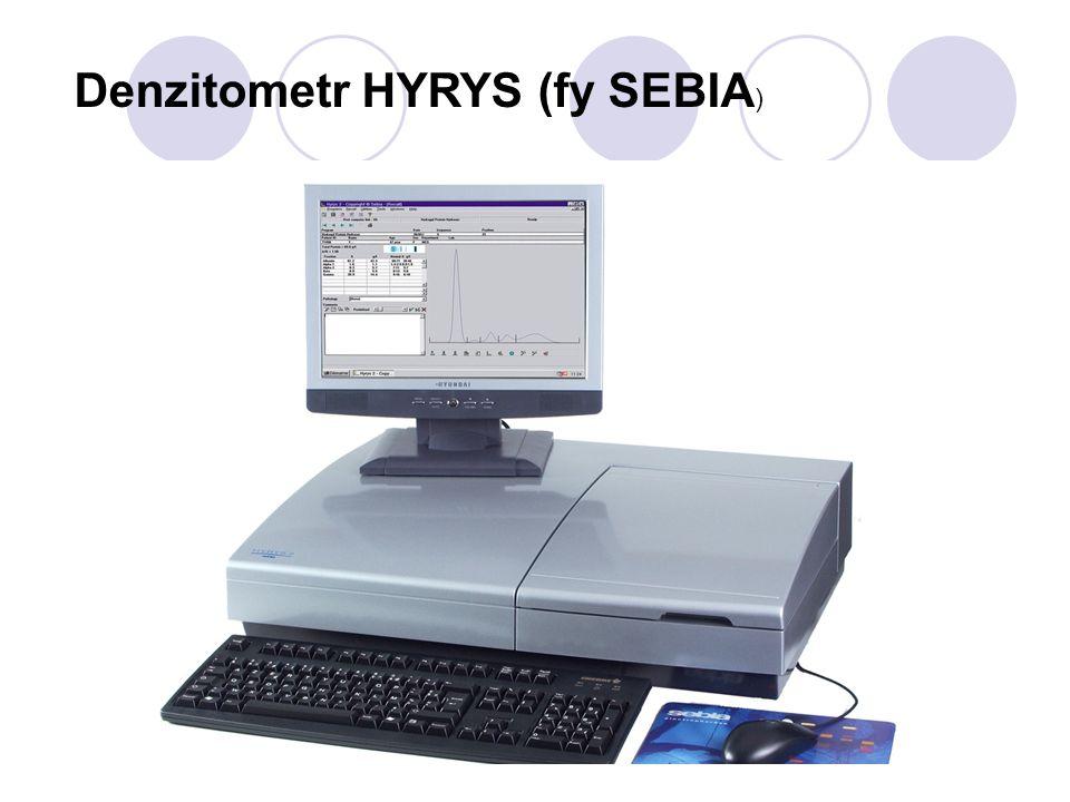 Denzitometr HYRYS (fy SEBIA )
