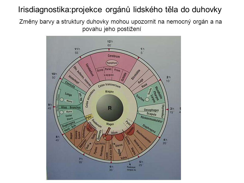 Irisdiagnostika:projekce orgánů lidského těla do duhovky Změny barvy a struktury duhovky mohou upozornit na nemocný orgán a na povahu jeho postižení