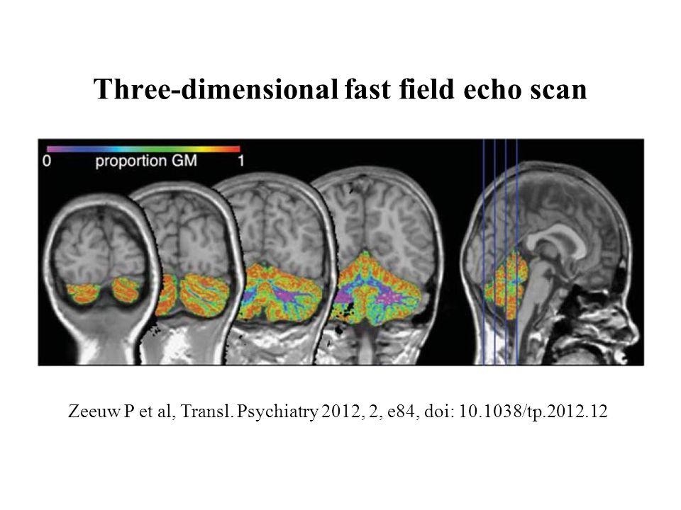 Zeeuw P et al, Transl. Psychiatry 2012, 2, e84, doi: 10.1038/tp.2012.12 Three-dimensional fast field echo scan