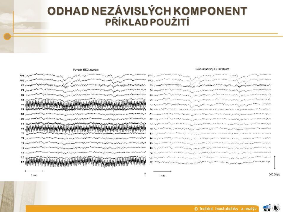 © Institut biostatistiky a analýz ODHAD NEZÁVISLÝCH KOMPONENT P Ř ÍKLAD POU Ž ITÍ