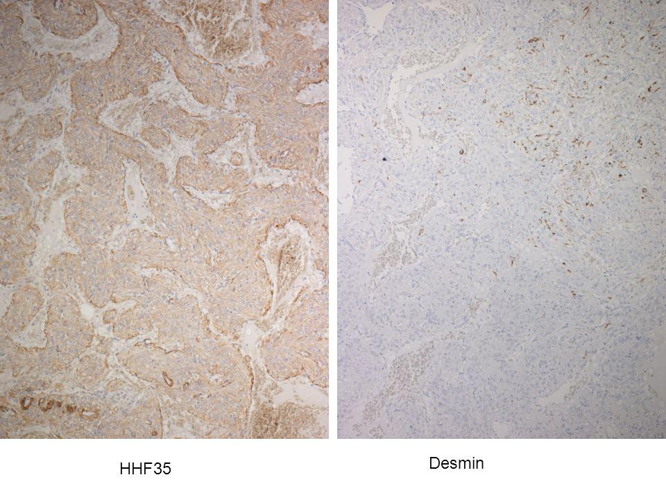 HHF35 Desmin