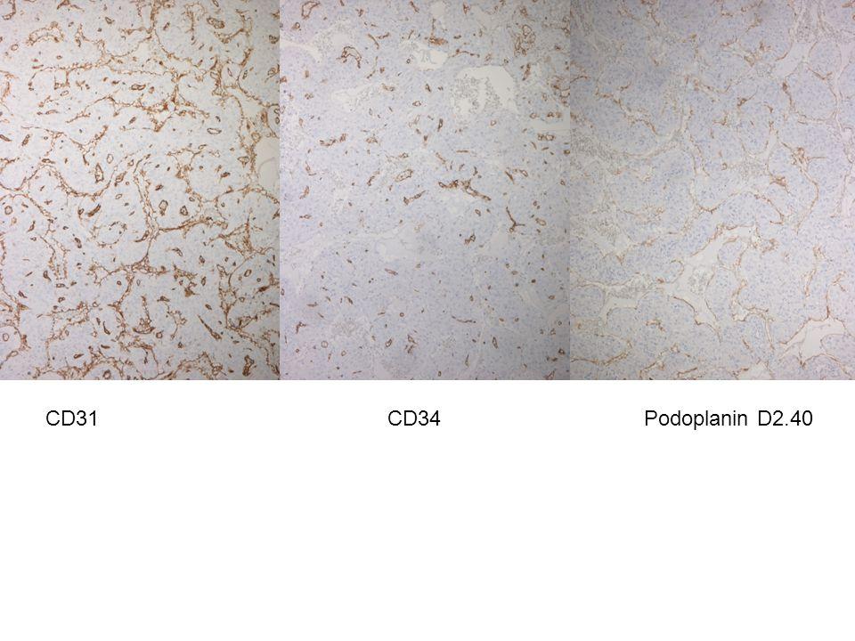 CD31CD34Podoplanin D2.40