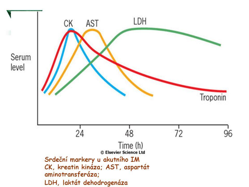 Srdeční markery u akutního IM CK, kreatin kináza; AST, aspartát aminotransferáza; LDH, laktát dehodrogenáza