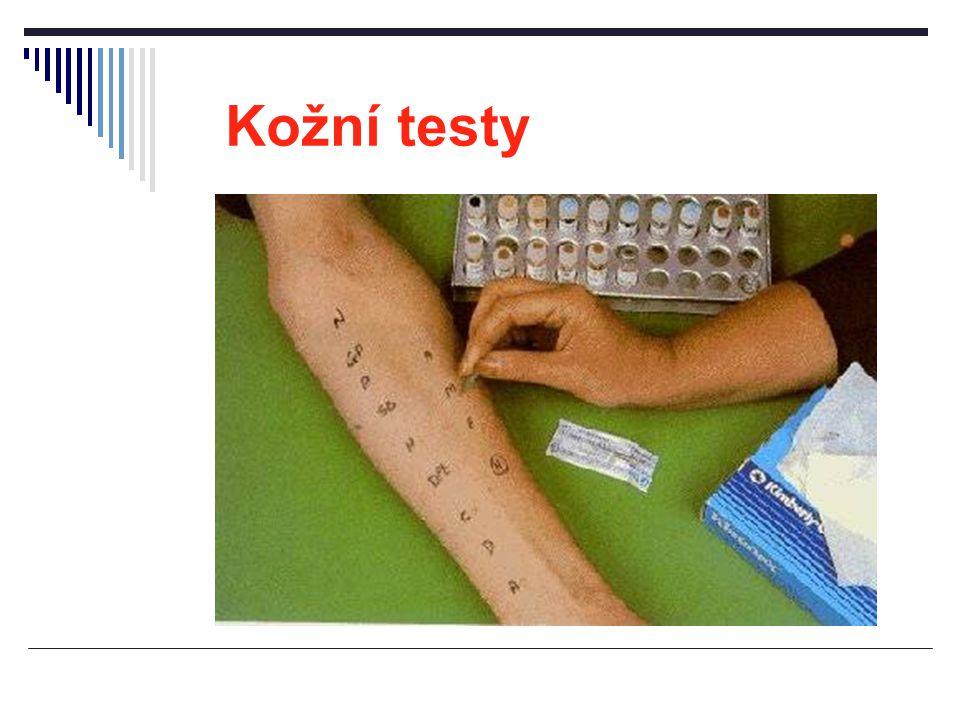 Kožní testy