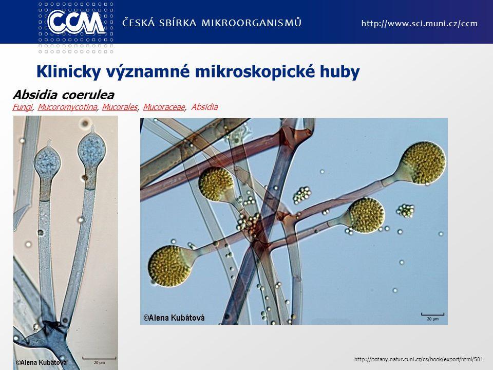 ČESKÁ SBÍRKA MIKROORGANISMŮ http://www.sci.muni.cz/ccm Klinicky významné mikroskopické huby Absidia coerulea FungiFungi, Mucoromycotina, Mucorales, Mu