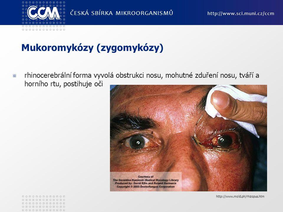 Mukoromykózy (zygomykózy) rhinocerebrální forma vyvolá obstrukci nosu, mohutné zduření nosu, tváří a horního rtu, postihuje oči ČESKÁ SBÍRKA MIKROORGA