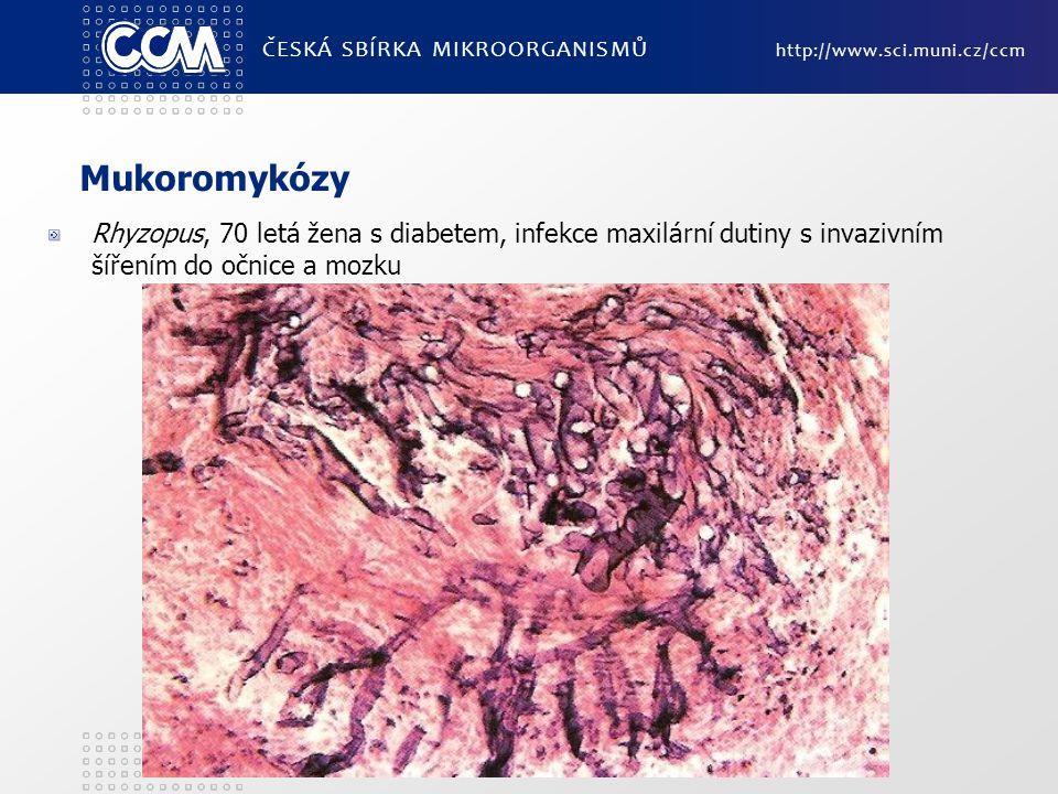 Mukoromykózy Rhyzopus, 70 letá žena s diabetem, infekce maxilární dutiny s invazivním šířením do očnice a mozku ČESKÁ SBÍRKA MIKROORGANISMŮ http://www