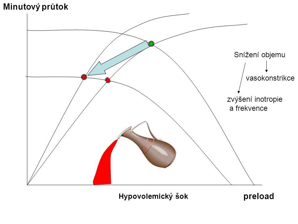 Hypovolemický šok Minutový průtok preload Snížení objemu vasokonstrikce zvýšení inotropie a frekvence