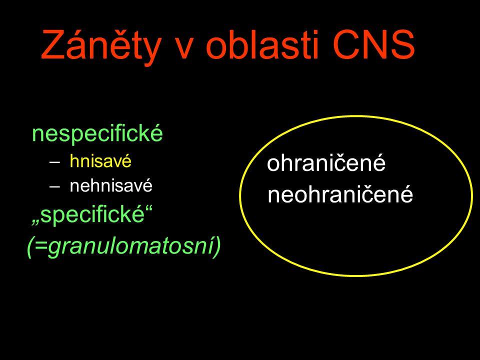 """Záněty v oblasti CNS nespecifické – hnisavé – nehnisavé """"specifické (=granulomatosní) ohraničené neohraničené"""