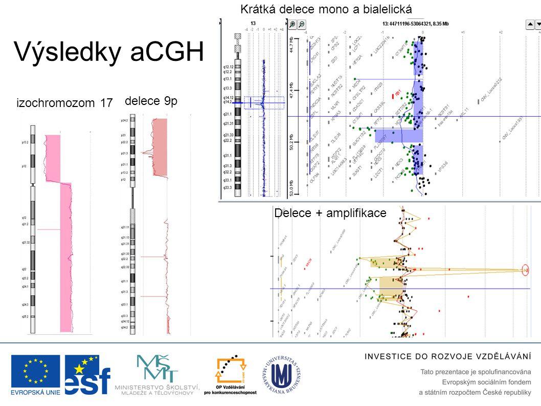 Výsledky aCGH delece 9p izochromozom 17 Krátká delece mono a bialelická Delece + amplifikace