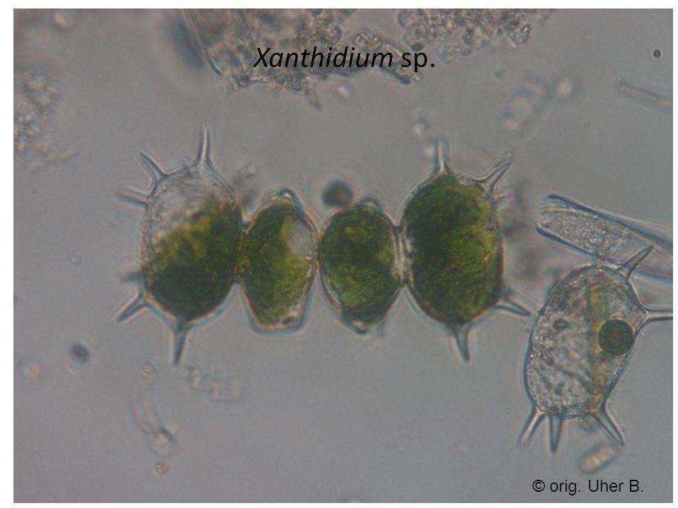 Xanthidium sp. © orig. Uher B.