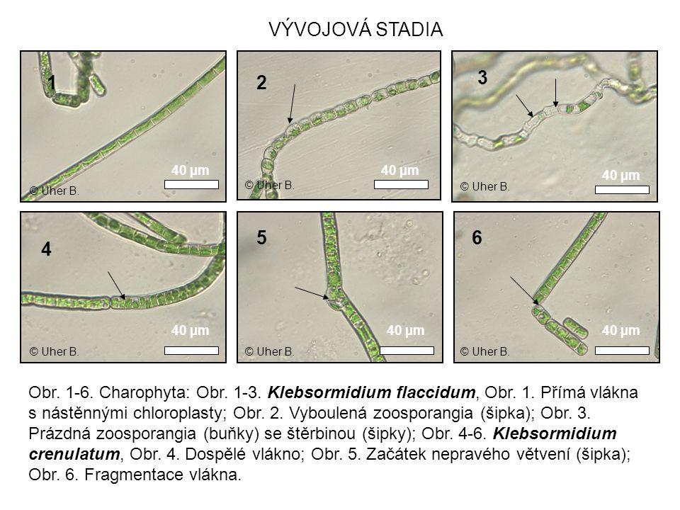1 Obr. 1-6. Charophyta: Obr. 1-3. Klebsormidium flaccidum, Obr. 1. Přímá vlákna s nástěnnými chloroplasty; Obr. 2. Vyboulená zoosporangia (šipka); Obr